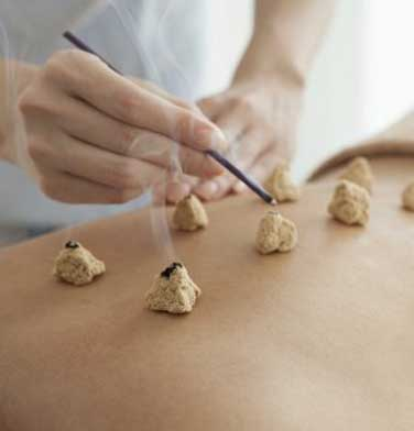 moxibustion acupuntura gijon