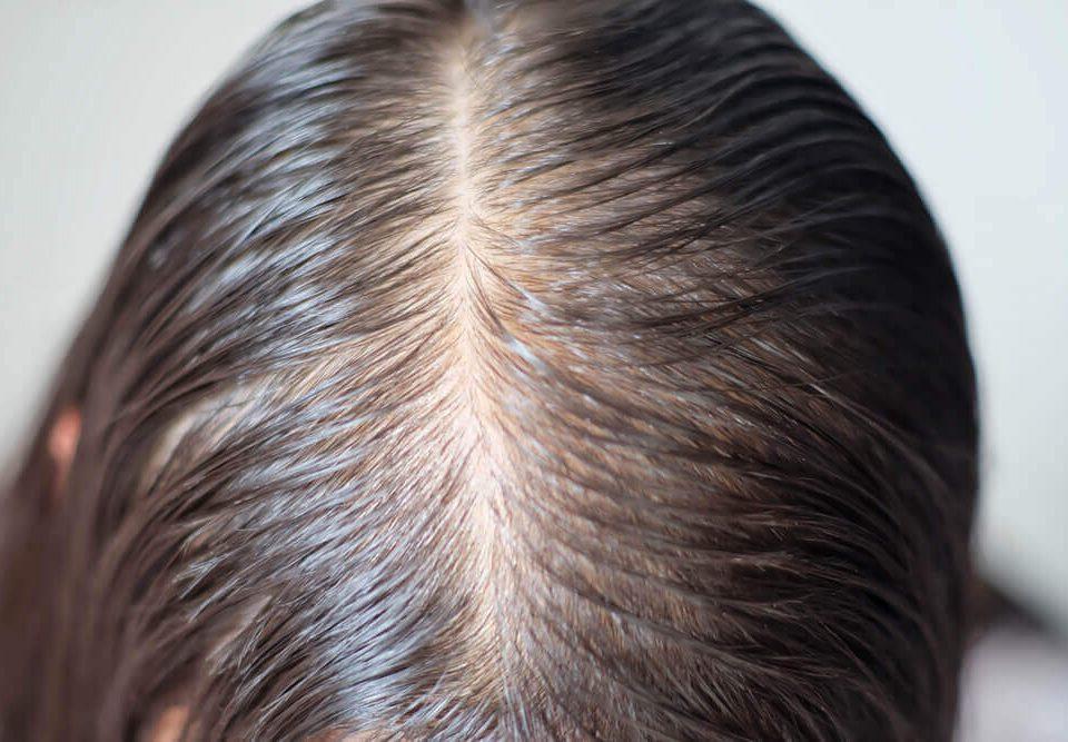 caida cabello alopecia